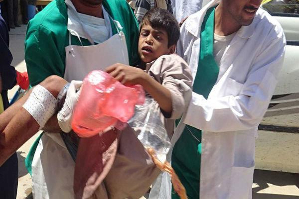حملات گسترده رژیم سعودی به الحدیده و شهادت 3 یمنی