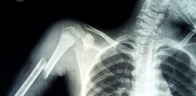 عوارض پرتوگیری های پزشکی غیرضرور به بهانه سالروز کشف اشعه ایکس