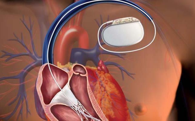 توزیع بیش از 3 هزار باطری قلب در 6 ماه اول سال جاری
