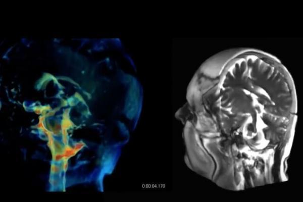 فناوری جدیدی برای تصویربرداری 3 بعدی از مغز