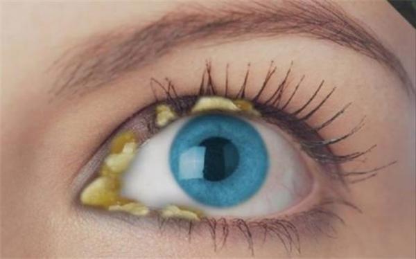 آنچه ترشحات چشم درباره سلامتی می گوید